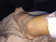 Ankle 1