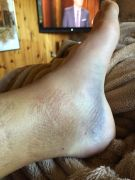 Ankle 2